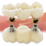 Bruxzir Implant Bridge